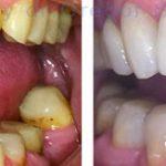Zobne luske omogočijo naraven in lep nasmeh